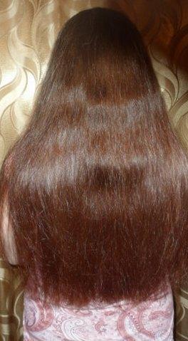 Вши на волосах лечение